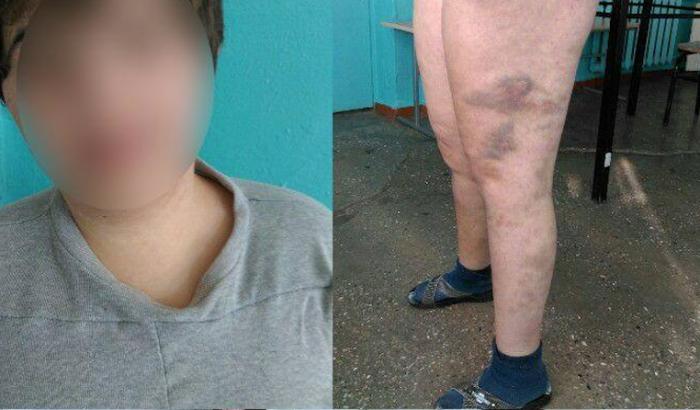 (foto) Avocatul Poporului a sesizat Procuratura Generală în cazul unei fete care ar fi fost maltrată în Spitalul de Psihiatrie din Codru