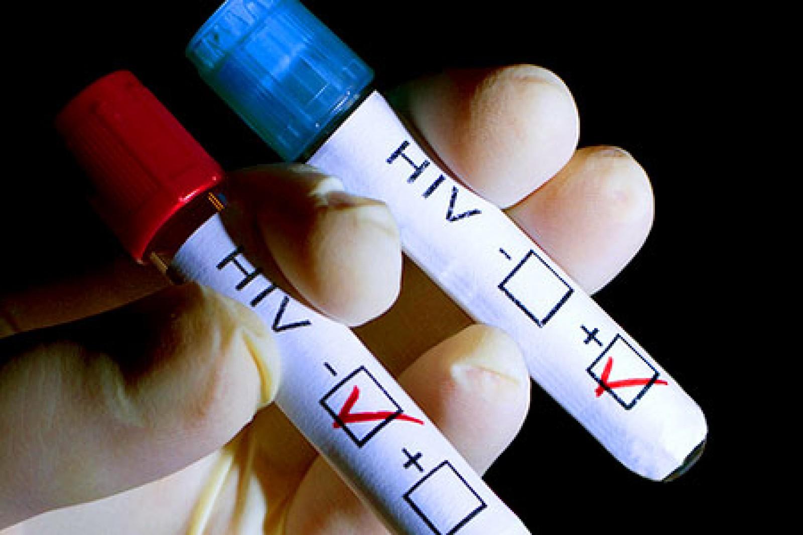 Moldova a primit un grant în valoare de 15,8 milioane de euro, destinați pentru combaterea tuberculozei și HIV/SIDA